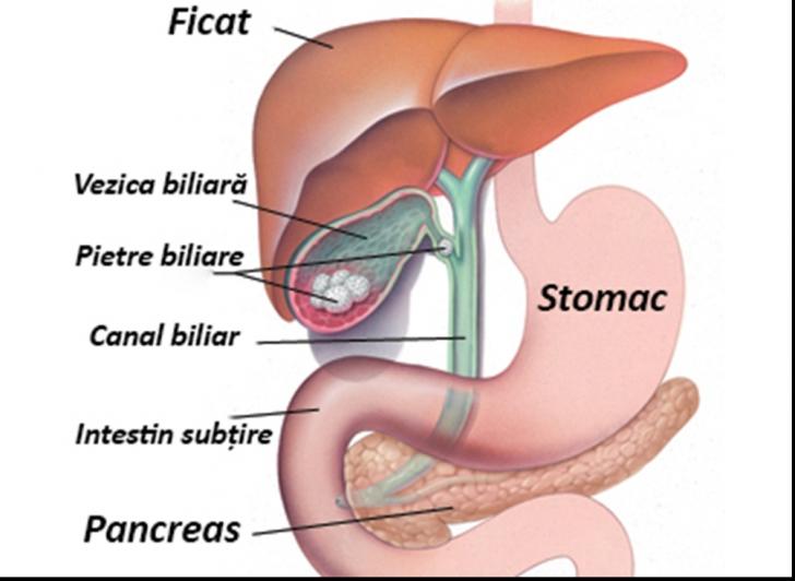 cancer biliar tratament)