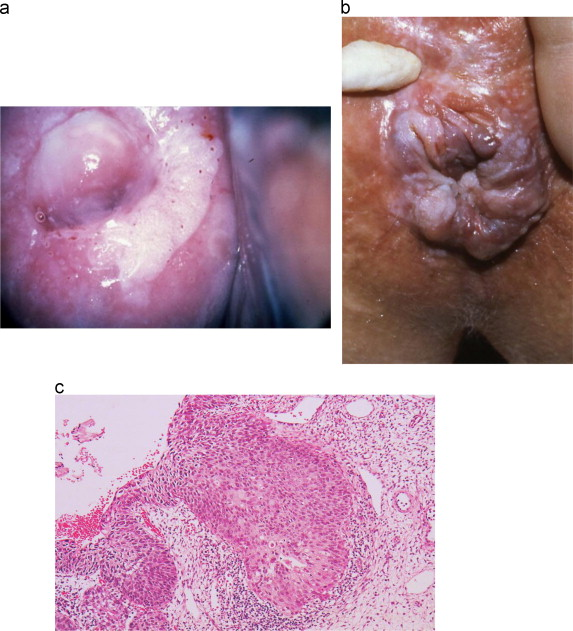 human papillomavirus rash description)