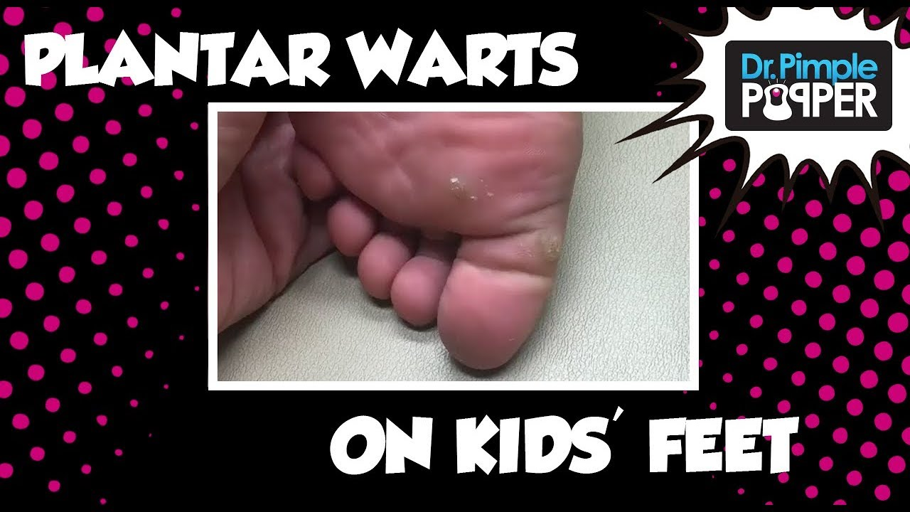 wart on foot in child)
