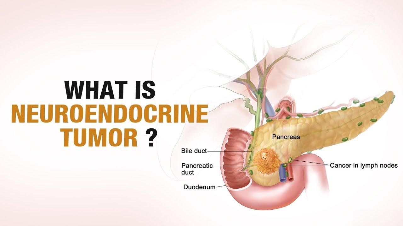 neuroendocrine cancer causes