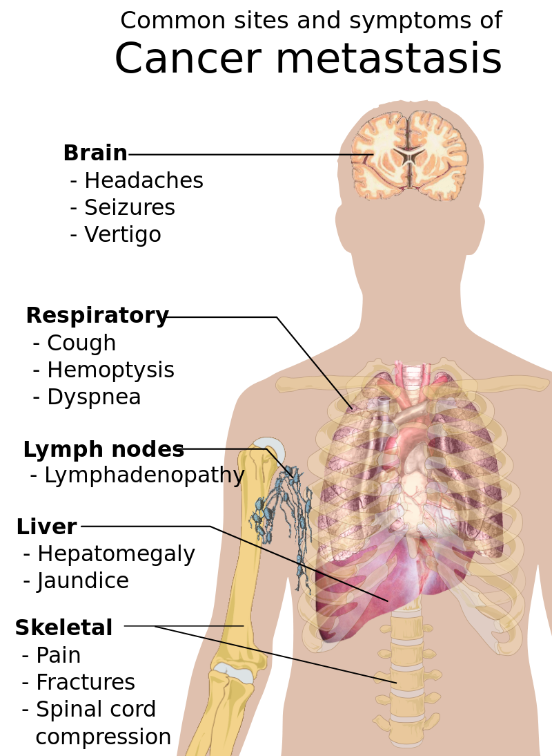 Sarcoma - Traducere în română - exemple în engleză | Reverso Context