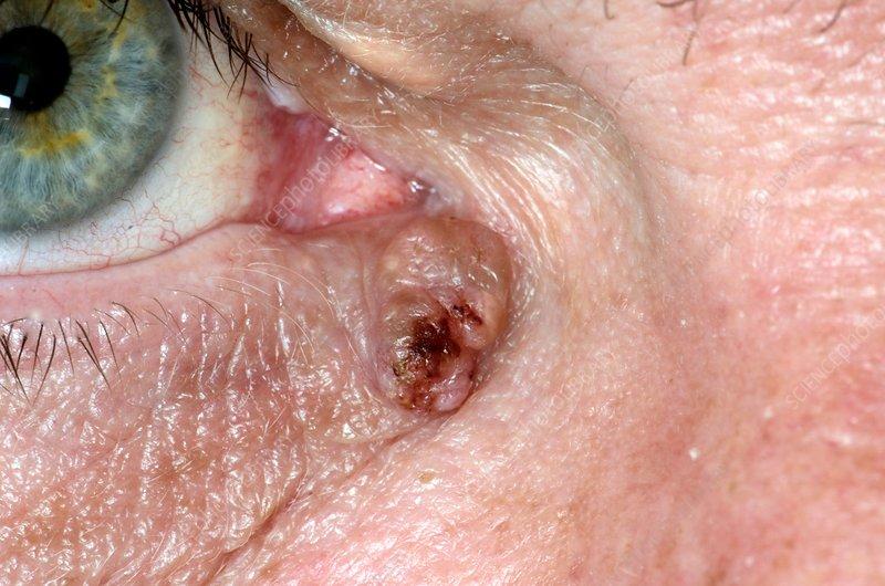 papilloma virus in the eye