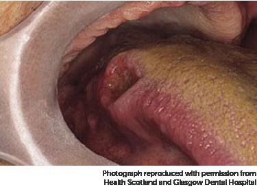 Cancer vulvar hidradenom