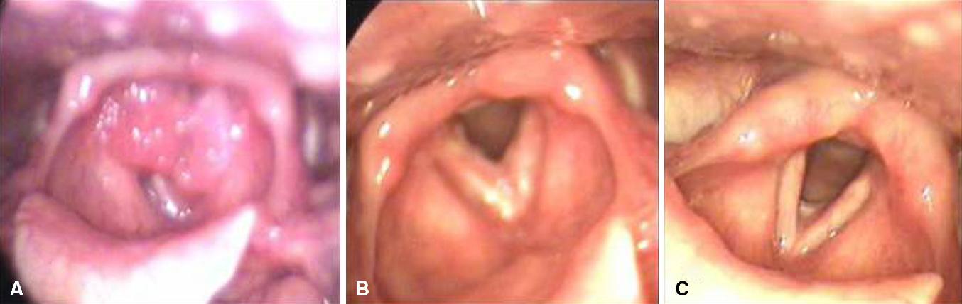 bilateral laryngeal papillomatosis)