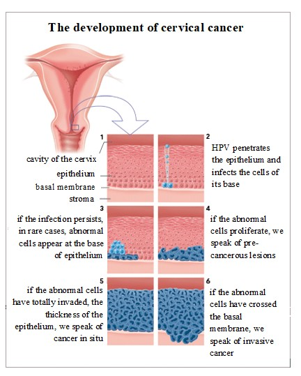 cervical cancer how long does it take to develop)