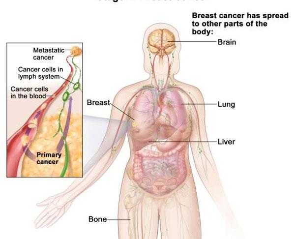 metastatic cancer news)