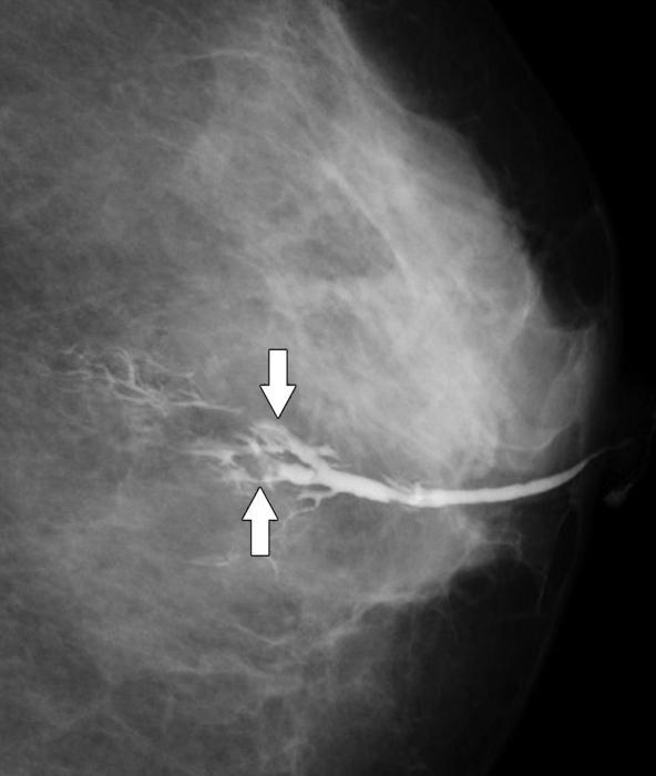 papilloma intraduttale benigno