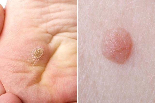 papiloma humano virus sintomas)
