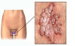 hpv enfeksiyonu tedavisi