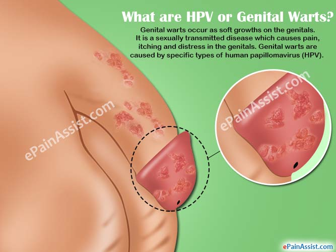 hpv virus without warts