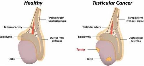Mărimea penisului chistului testicular