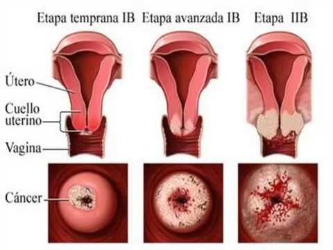 virus del papiloma humano cancer sintomas)