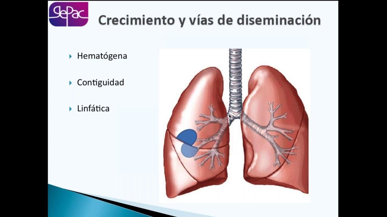 cancer pulmonar bases medicina