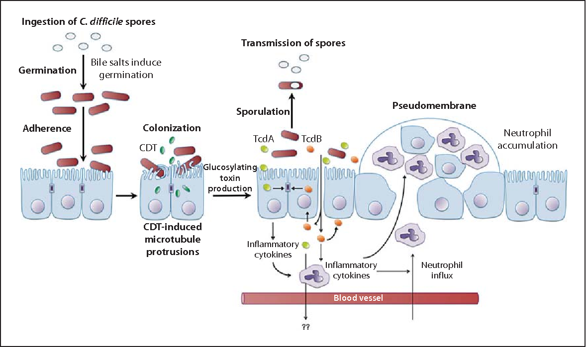 Antigenul Clostridium difficile, toxin A/B (calitativ)