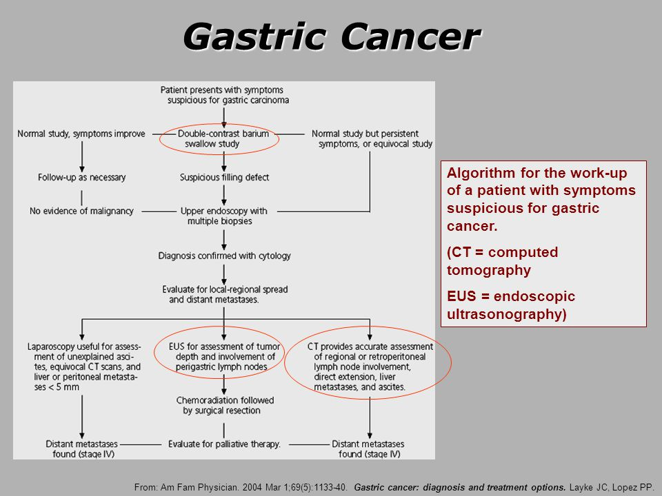 PPT – cancer esofag PowerPoint presentation | free to download - id: 2ab7ca-NmMwY