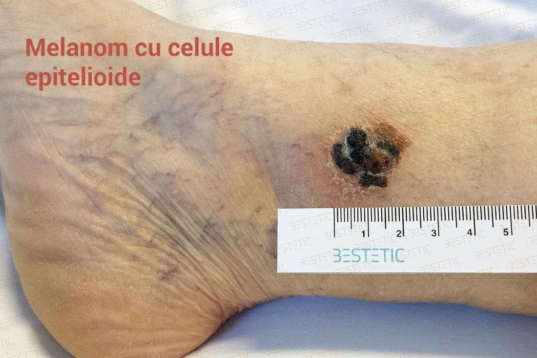 De ce este cancerul de piele atat de mortal?