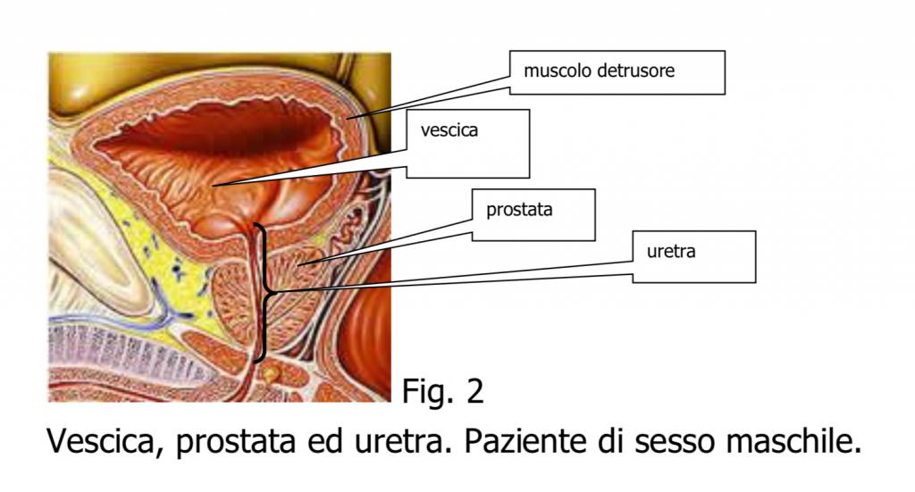 resezione papilloma vescicale)