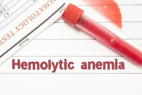 anemie hemolitica ereditara parazity v tele liecba