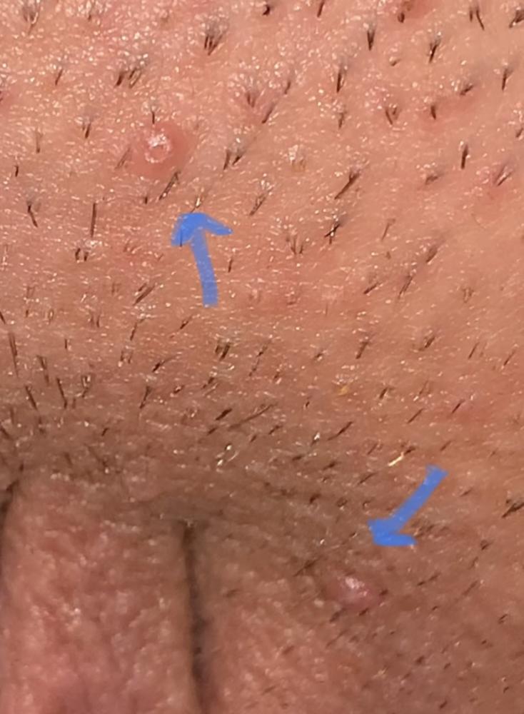hpv vs herpes symptoms