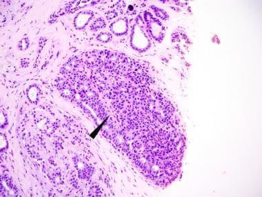 Infectii evenimente-corporate.ro | Herpes Simplex | Clinical Medicine