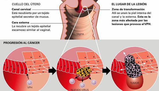 virus del papiloma humano y cancer de cuello de utero)