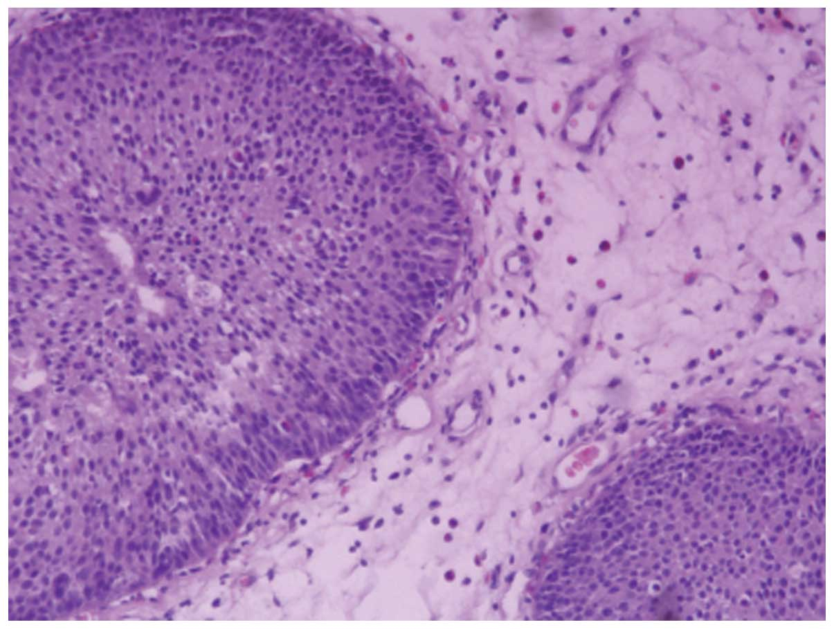 inverted papilloma cell carcinoma