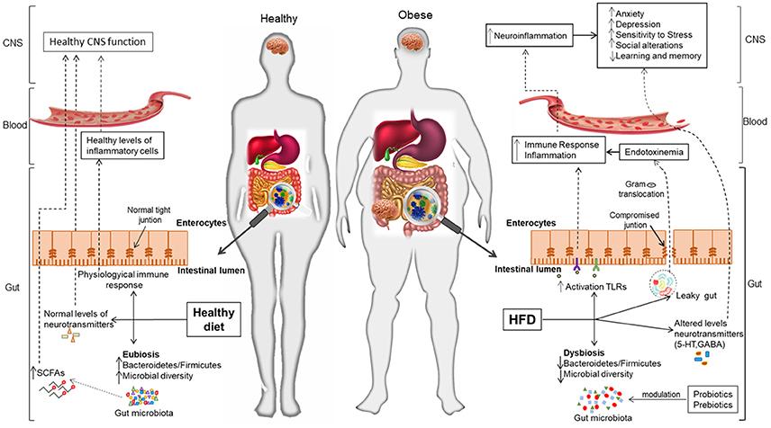 Consecințele complicațiilor dysbiosis asupra articulațiilor