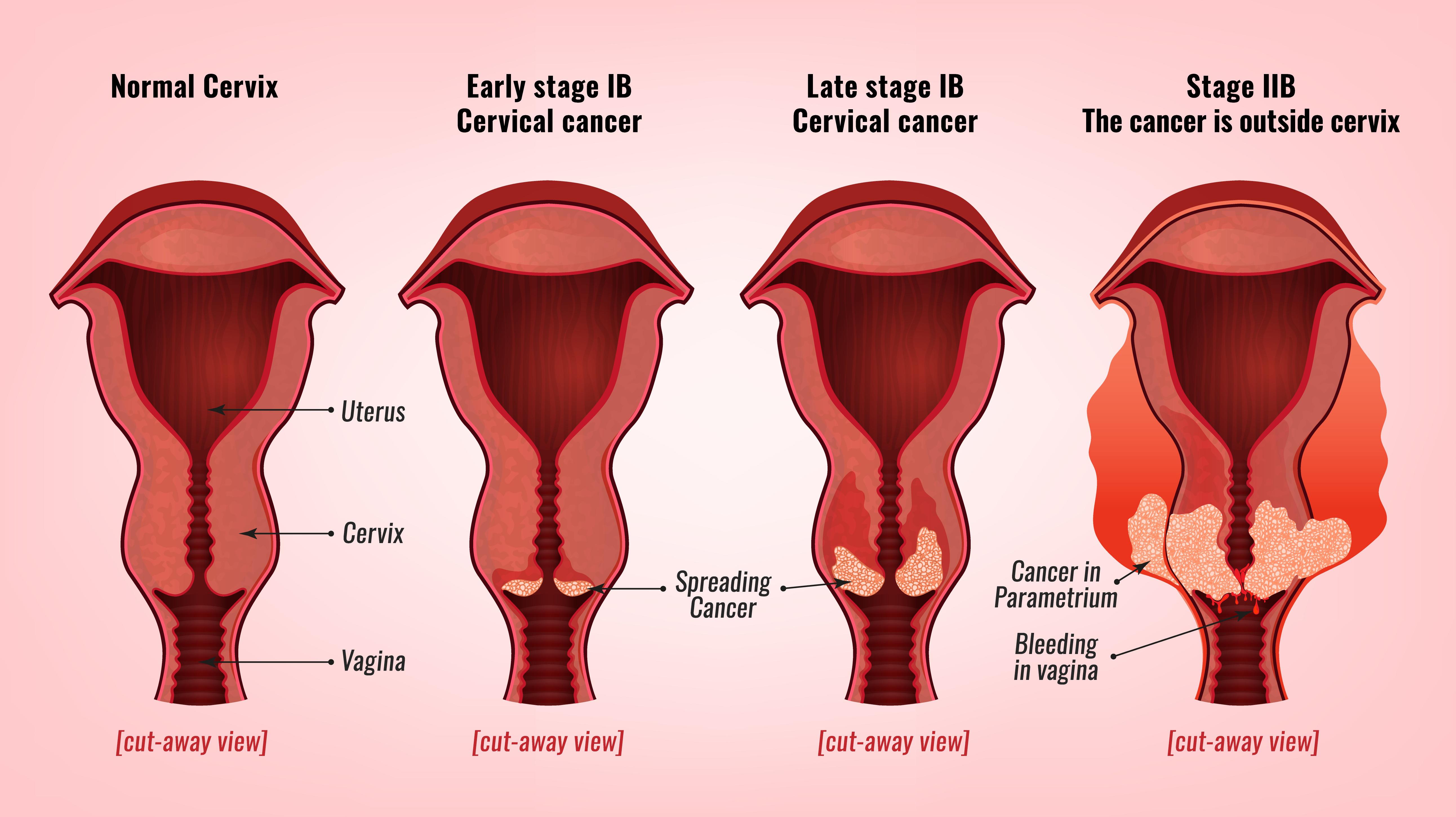 Cancer de prostată iod