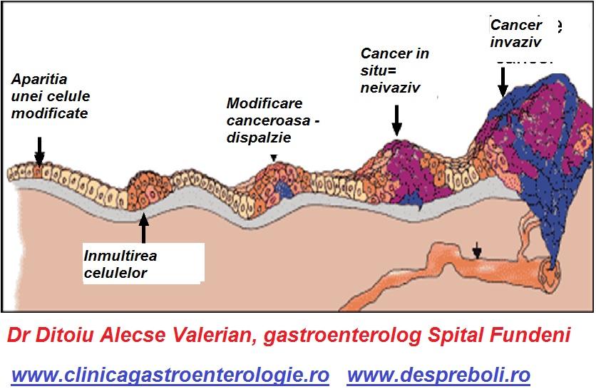cancer la colon sanse de supravietuire)