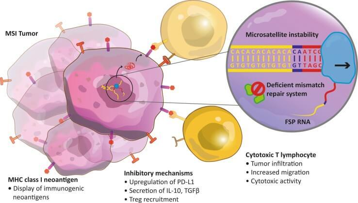 metastatic cancer immunotherapy)