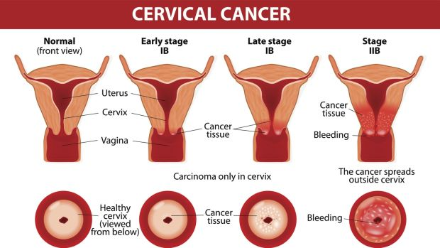 hpv cervical cancer injection