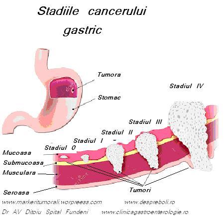 simptome cancer gastric