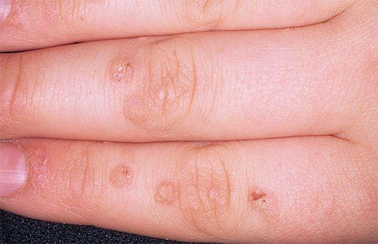 papilloma virus cauze