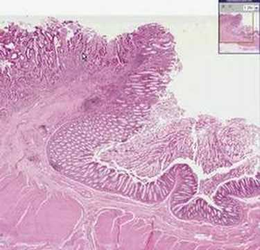 cancer colorectal histologie