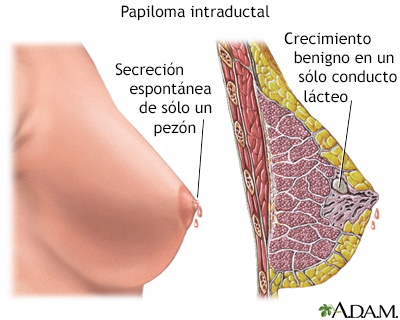 papiloma intraductal en el seno)