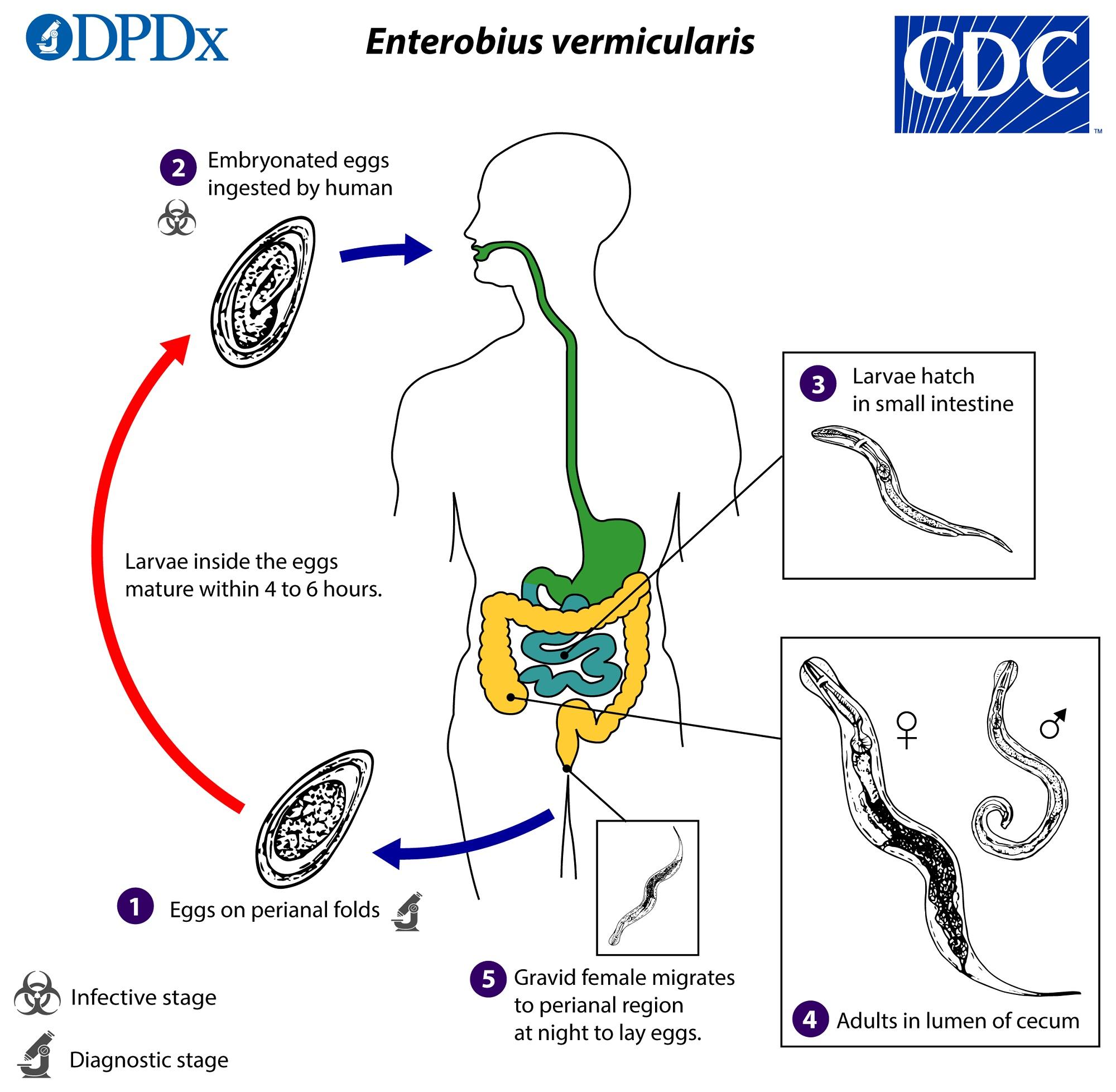 enterobiasis vs ascariasis)