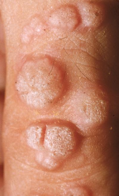 human papillomavirus verruca)