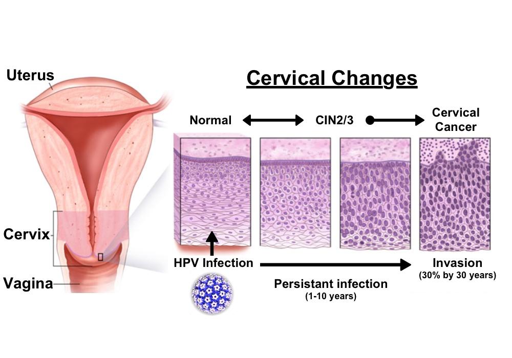 tratamentul papilomului cervical curățare zilnică naturală a colonului de detoxifiere