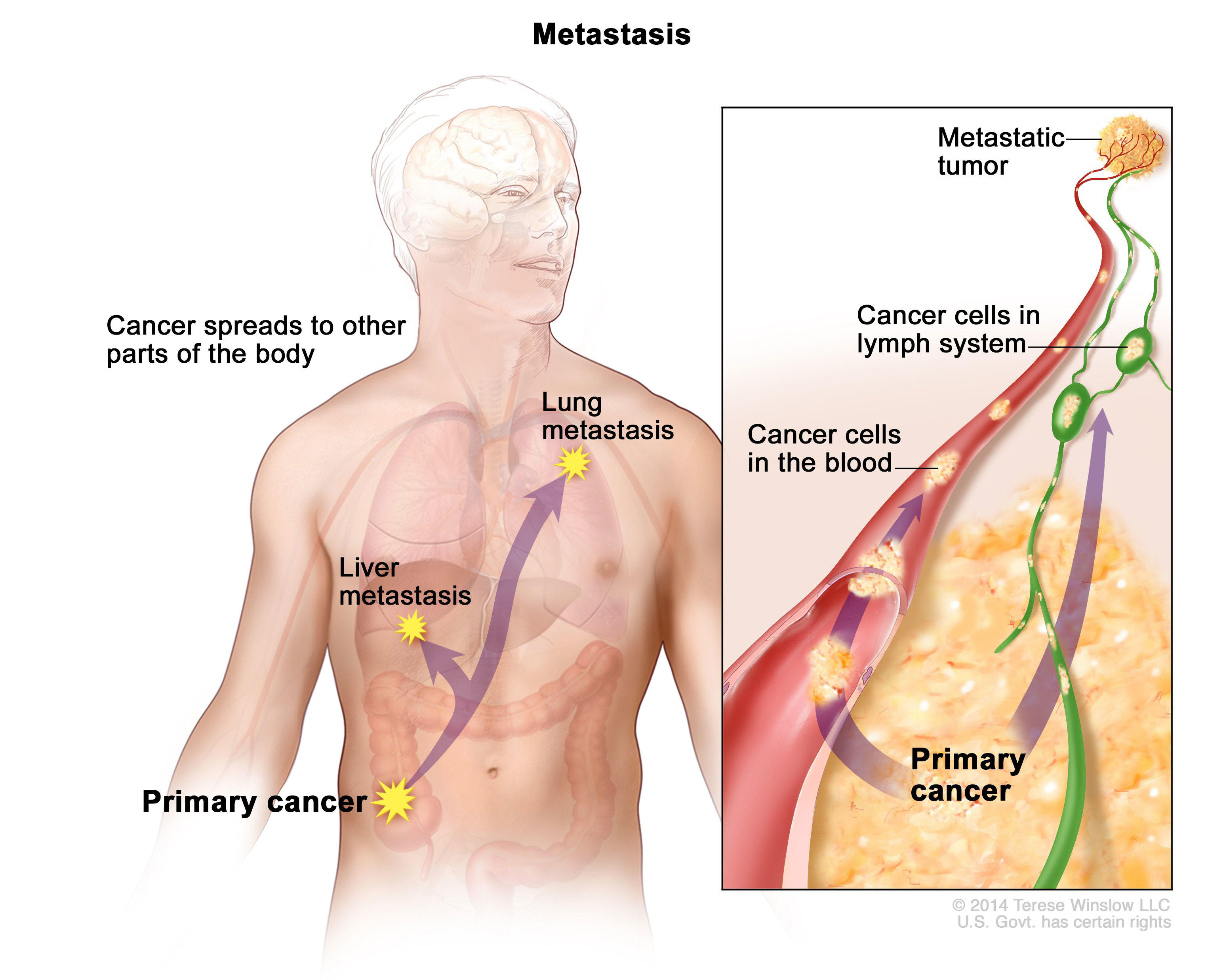 metastatic cancer carcinoma)