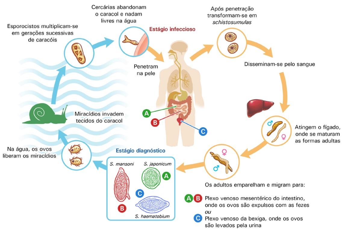 tratamentul varicozei varicoză în laserul mogilev)