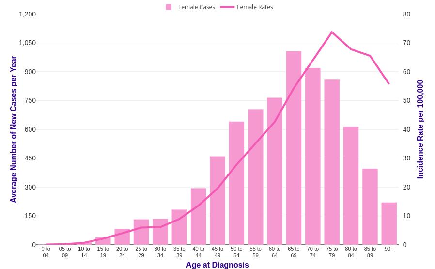 Cancerul ovarian si mutatiile BRCA
