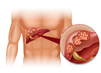 Cailor biliare (cancer al)