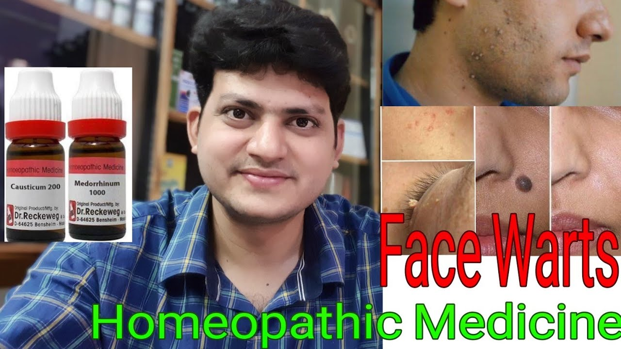 homeopathy treatment for papilloma