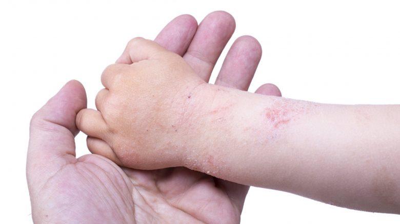 Crema triderm pentru dermatita varicoasa