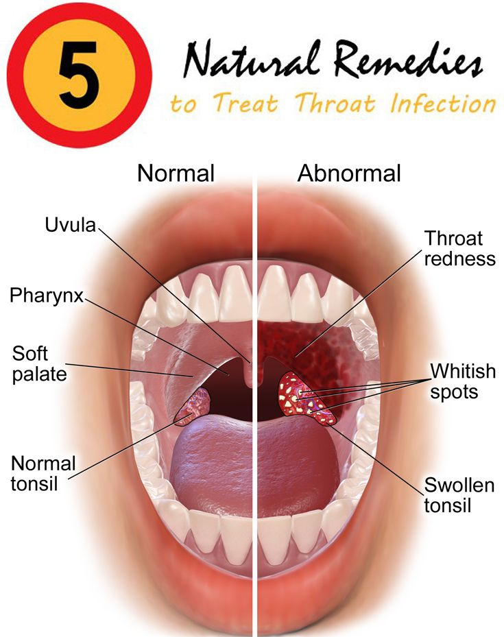 hpv in throat treatment