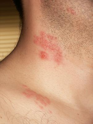 virus hpv e herpes
