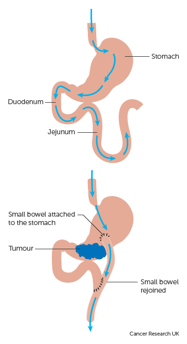 abdominal cancer surgery cara menghilangkan kutil papilloma