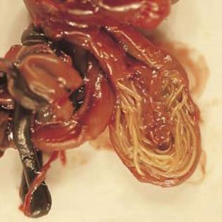 simptome la paraziti intestinali