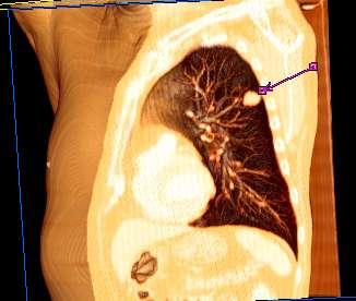 cancer pulmonar que lo origina