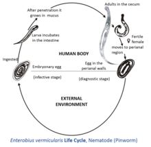 enterobiasis pinworm